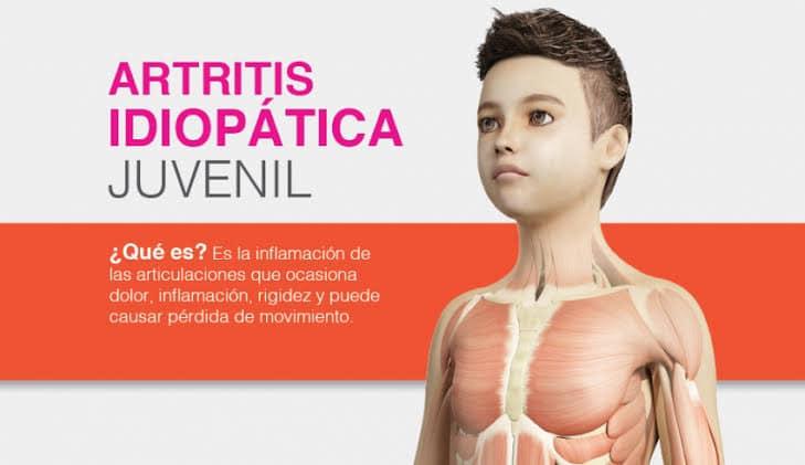 AMEPAR, promueve el diagnóstico oportuno de enfermedades reumáticas